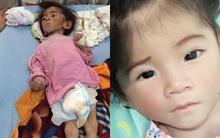 Tin vui: Bé gái Lào Cai 14 tháng tuổi chỉ nặng 3,5 kg hiện đã được 6 kg và hồng hào hơn