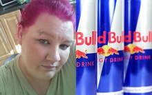 Suýt mù mắt vì uống 28 lon tăng lực Redbull mỗi ngày