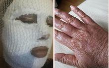 Người phụ nữ 20 năm phải ở trong nhà vì căn bệnh lạ