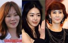Những kiều nữ Hàn bị biến dạng do phẫu thuật thẩm mỹ
