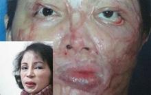 Người phụ nữ Hà Nội 41 lần phẫu thuật làm đẹp