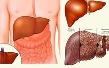Viêm gan tối cấp: căn bệnh đặc biệt nguy hiểm