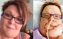 Tưởng rằng chỉ bị mụn lâu khỏi, người mẹ 2 con suýt bỏ mạng vì ung thư