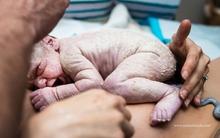 Khoảnh khắc em bé vừa mới chào đời chạm đến trái tim của những người làm mẹ