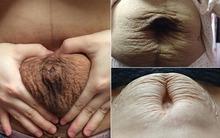 Bật khóc với hình ảnh bụng rạn, bèo nhèo và nhăn nhúm sau sinh của mẹ