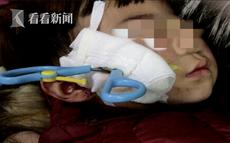 Bé 2 tuổi bị chiếc kéo đâm xuyên má chỉ vì một phút lơ là của người lớn