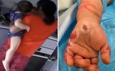 Đang nấu ăn trong bếp, người giúp việc bỗng nhúng tay em bé 16 tháng tuổi vào nồi canh đang sôi