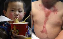 Có một mối nguy hiểm từ cháo và mỳ ăn liền đe dọa sức khỏe của trẻ mà cha mẹ không ngờ tới