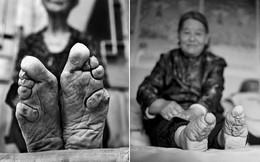 """Tục """"Bó chân gót sen"""" của Trung Quốc xưa: Hình ảnh những đôi chân rỉ máu và biến dạng khiến phụ nữ thời nay phải nín thở nổi da gà"""