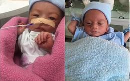 Thường xuyên thức khuya lúc mang bầu, mẹ trẻ nghe tin sét đánh ngang tai khi bác sĩ nói con bị suy dinh dưỡng nặng, phải mổ gấp