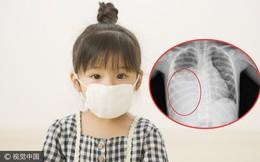 Bé 5 tuổi bị sốt, ho kéo dài, tràn dịch màng phổi do căn bệnh mà trẻ nhỏ rất dễ mắc vào mùa thu: Cha mẹ nào cũng nên biết để phòng ngừa