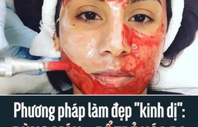 """Phương pháp làm đẹp """"kinh dị"""": Dùng máu... để trẻ hóa da"""