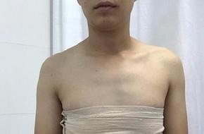 TP.HCM: Sắp phẫu thuật chuyển giới cho cô gái mang trong mình bộ phận sinh dục dị biệt