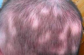 Cậu bé 4 tuổi rụng tóc nghiêm trọng, mẹ phát hoảng khi biết được nguyên nhân