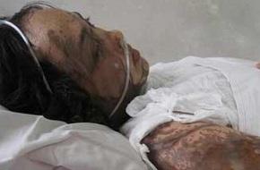Đồng Nai: Vợ bị chém đứt gân tay, chồng tức giận tạt axít làm 6 người bị bỏng