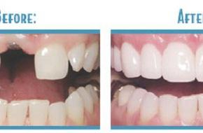 Quy trình cấy ghép răng giả như răng thật nhờ công nghệ mới