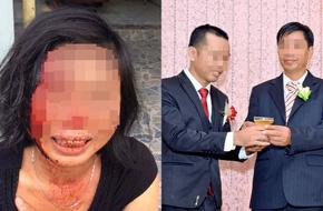 """Con trai người phụ nữ bị chồng bạo hành tại Đồng Nai: """"Mẹ bị cha dượng đánh suốt 23 năm nay"""""""