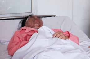 Vụ tạt axit ở Đồng Nai: Cô gái mâu thuẫn trực tiếp với người tạt axit có nguy cơ bị mù
