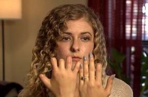 Cô gái mất 6 ngón tay và 2 ngón chân chỉ sau  một cơn đau họng ngỡ rất bình thường