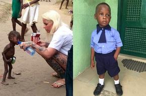 Ngỡ ngàng hình ảnh cậu bé bị cha mẹ bỏ rơi khiến suy dinh dưỡng nặng sau một năm gặp lại