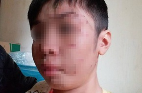 Vụ bé trai 10 tuổi bị bạo hành dã man: Mẹ kế thừa nhận bạo hành con chồng vì cháu ăn vụng thịt bò