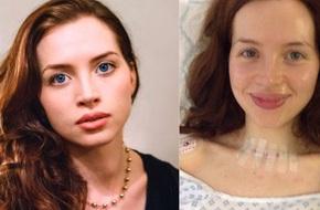 Phát hiện dấu hiệu lạ qua bức ảnh chụp, cô gái trẻ 26 tuổi đã rất sốc khi biết mình bị ung thư