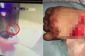 Bé gái bị thương nghiêm trọng khi đi thang máy bởi sai lầm cha mẹ hay gặp phải