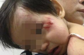 Hà Nội: Bé gái bị xe phân khối lớn đâm rách mặt rồi bỏ chạy