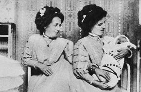 Đời sống tình dục bí ẩn và thị phi của cặp nữ song sinh liền thân nổi tiếng lịch sử