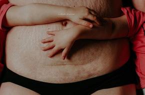 Bèo nhèo và chằng chịt vết rạn, đây mới là hình ảnh thật nhất về cơ thể người mẹ sau sinh