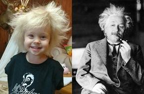 Lý giải khoa học đằng sau mái tóc kỳ lạ, trông như hoa bồ công anh của cô bé 2 tuổi