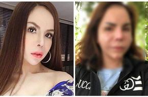 Hot girl chuyển giới nổi tiếng MXH Lin Da bất ngờ chia sẻ ảnh gương mặt biến dạng sau khi nạo silicon
