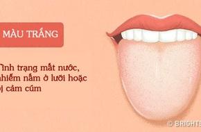 Bằng cách kiểm tra lưỡi mỗi ngày, rất có thể bạn sẽ phát hiện sớm những căn bệnh mình đang gặp phải