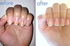 Móng tay vàng khè như dính nghệ do sơn thường xuyên cũng sẽ trắng hồng luôn, bạn biết làm cách nào không?