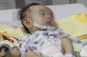 TP.HCM: Phẫu thuật, cứu sống bé gái bị bệnh tim cực hiếm, lần đầu tiên gặp ở Việt Nam
