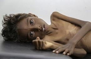 Bức hình bé trai 5 tuổi suy dinh dưỡng đầy ám ảnh về nỗi đau của trẻ em Yemen