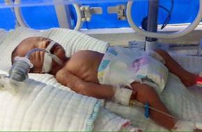 Thai phụ mang thai 7 tháng tử vong vì tai nạn giao thông, con chưa chào đời đã mồ côi mẹ