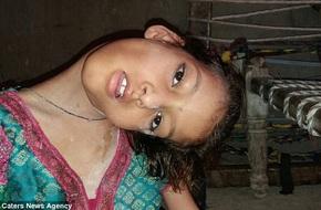 Xót xa bé gái mắc bệnh hiếm khiến đầu nghiêng 90 độ, bị cả làng kì thị