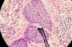 Ứng dụng nghiên cứu tế bào biểu mô ung thư và các bệnh về da