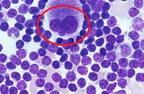 Đã phát minh thành công thuốc làm tan chảy khối u: Chuyên gia Việt ở nước ngoài xác nhận