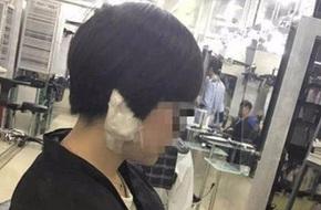 Trung Quốc: Đến tiệm làm đẹp, người phụ nữ trẻ bị thợ cắt tóc xẻo mất dái tai