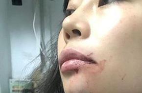 Nữ hành khách bị lái xe Uber đánh