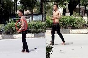 """Nam thanh niên nghi """"ngáo đá"""" tự đâm xổ ruột giữa đường"""