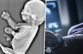 Dù thai đã được 6 tháng, bà mẹ vẫn quyết định bỏ con khi xem hình siêu âm gây sốc này