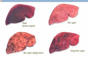 70 - 80% ca mắc ung thư gan xuất phát từ nguyên nhân này, hãy phòng tránh ngay từ hôm nay