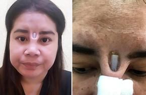 Nhiễm trùng sau khi sửa mũi, người phụ nữ kinh hoàng khi cây sụn trồi ra giữa mặt