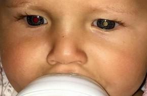 Thấy con có những đốm sáng trong mắt, mẹ không ngờ đó là biểu hiện của bệnh ung thư mắt hiếm gặp