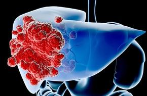 Căn bệnh dẫn đến xơ gan và ung thư gan: Rất nguy hiểm vì nhiều người mắc mà không biết