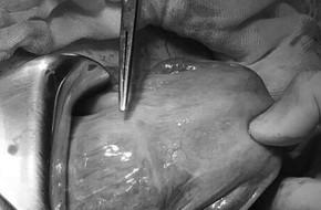 Thai lần 3 bám vào sẹo mổ cũ biến chứng, người phụ nữ 39 tuổi ở Cần Thơ suýt chết