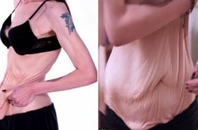 Hậu giảm cân, cô gái bị trầm cảm nặng vì làn da chảy xệ